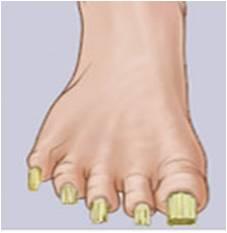 uña en garra - Enfermadades de las uñas de los pies