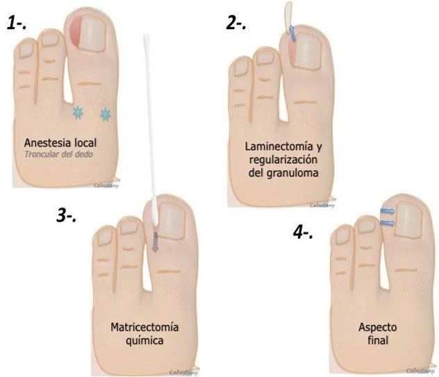 uña encarnada pasos - Enfermadades de las uñas de los pies