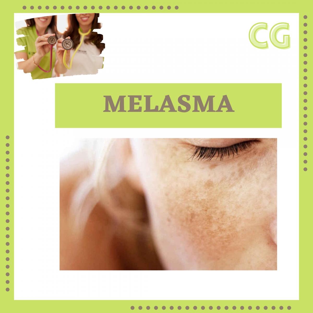 03 MELASMA 1200x1200 - Medicina Estética
